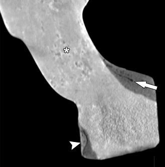 Лебединая шея Нефертити