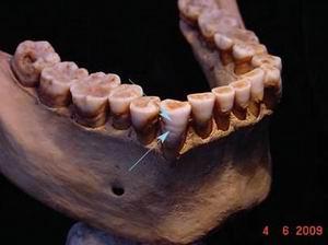 Гипоплазия зубов жителя Амарны